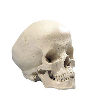 Hydrocephalic Human Skull A29/2