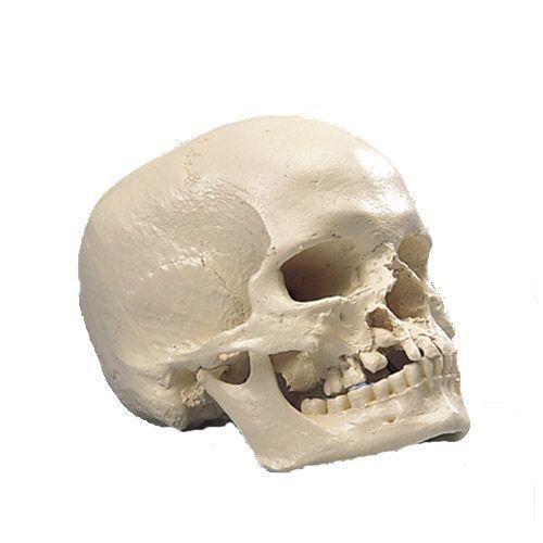Microcephalic Human Skull A29/1