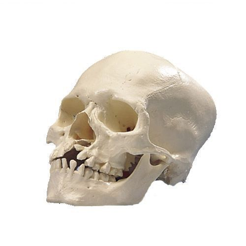 Human Skull with Cleft Jaw and Palate A29/3