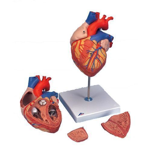Enlarged heart G12