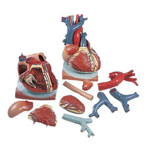 3 times Enlarged Heart on Diaphragm model VD251