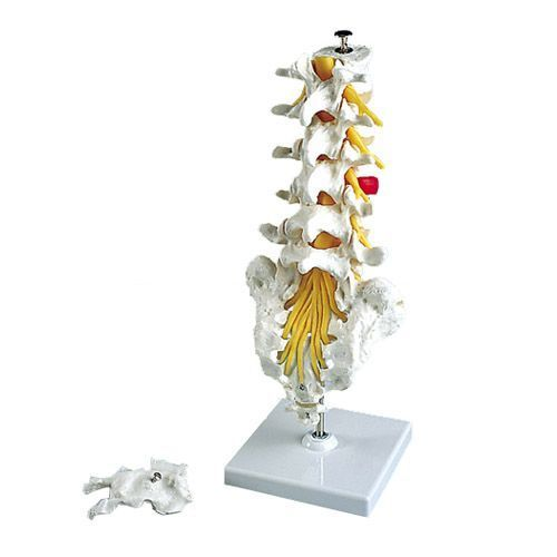 Lumbar Spinal Column with dorso-lateral prolapsed intervertebral disc A76/5
