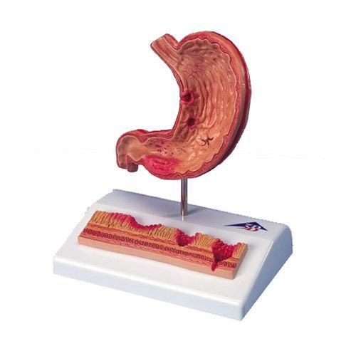 Stomach with Ulcers model K17