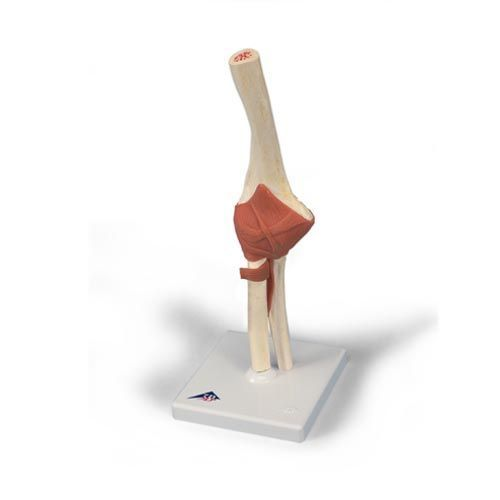 Deluxe Functional Elbow Joint Model A83/1